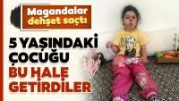 İzmir'de korkunç olay! 5 yaşındaki Neriman Bulut'u bu hale getirdiler!
