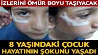 Sokak köpeği 8 yaşındaki Mehmet'e dehşeti yaşattı